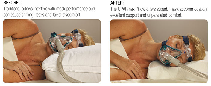 before-after-cpap-max-caption.jpg